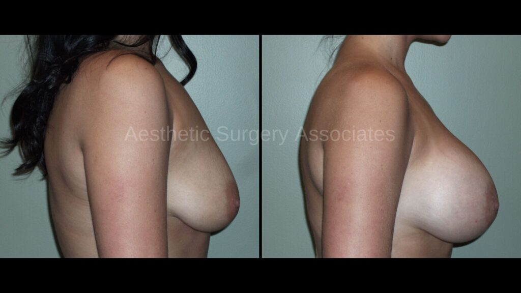 Aesthetic Surgery Associates Breast Augmentation 2