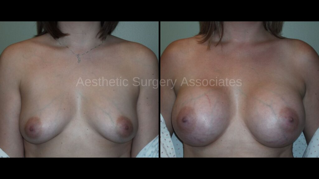 Aesthetic Surgery Associates Breast Augmentation 3