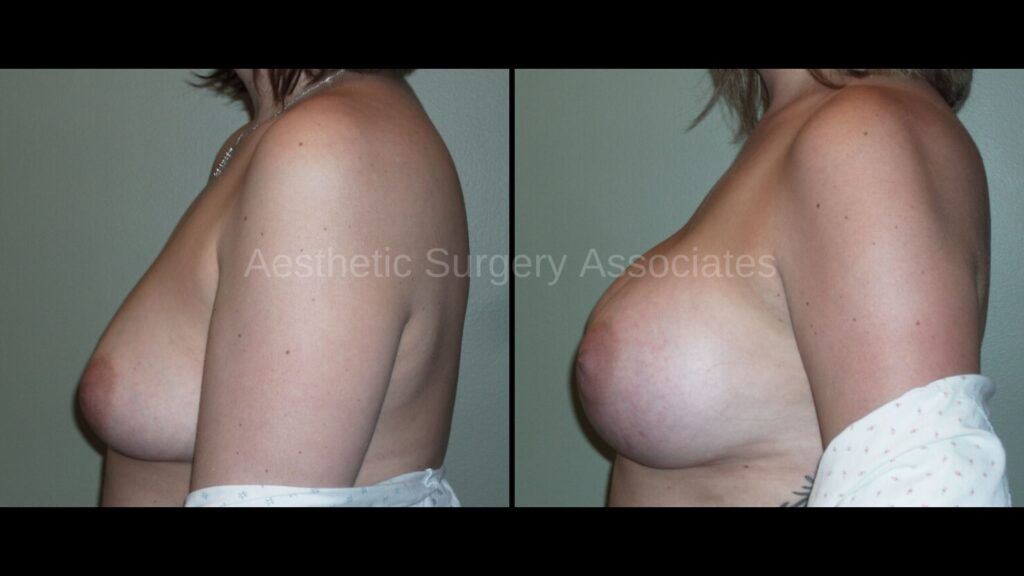 Aesthetic Surgery Associates Breast Augmentation 4